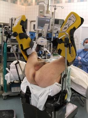 In high lithotomy position, legs are supported wit