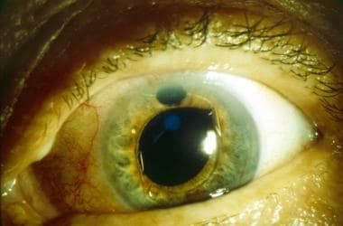Patient with persistently elevated intraocular pre