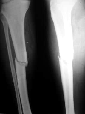 Isolated tibial fracture without fibular fracture.