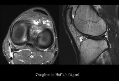 Ganglion in the Hoffa fat pad. Courtesy of James K