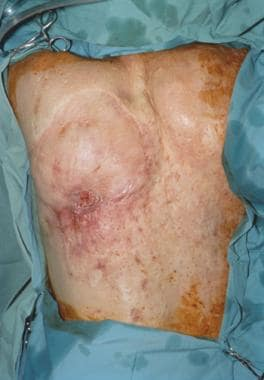 Middle-aged man with squamous cell carcinoma over