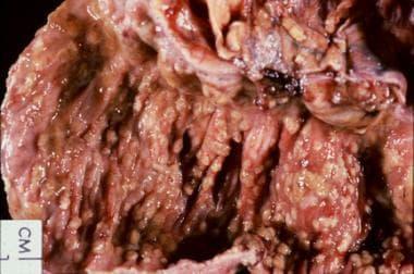 Clostridium Difficile Colitis Differential Diagnoses