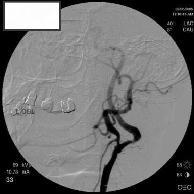 Oblique view of left carotid artery demonstrating
