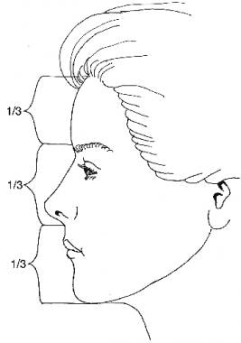 Concept of facial thirds. The distance from the ha