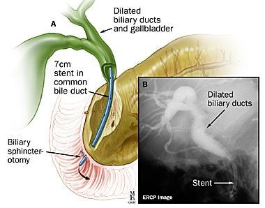 (A) Biliary sphincterotomy and stent placement; (B
