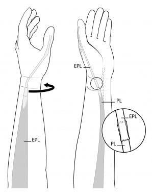 Palmaris longus (PL) to rerouted extensor pollicis