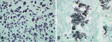 A) Histoplasma; B) Pneumocystis.