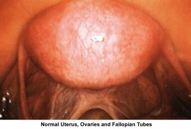 Infertility. Normal uterus, ovaries, and fallopian