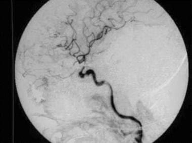 Direct carotid-cavernous fistula after embolizatio