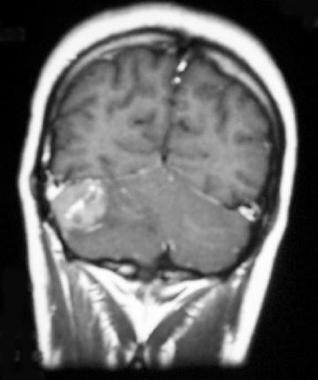 Medulloblastoma. Coronal T1-weighted postcontrast