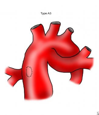 Van Praagh classification of truncus arteriosus ty