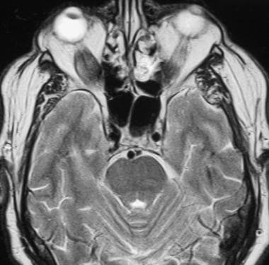 MRI axial section demonstrates enlarged inferior r
