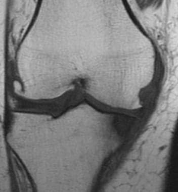T1-weighted coronal MRI of the knee shows typical