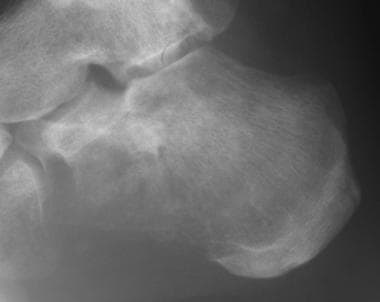 Lateral radiograph of the calcaneum in an adult wi