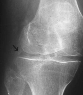 Oblique radiograph of the right knee demonstrates