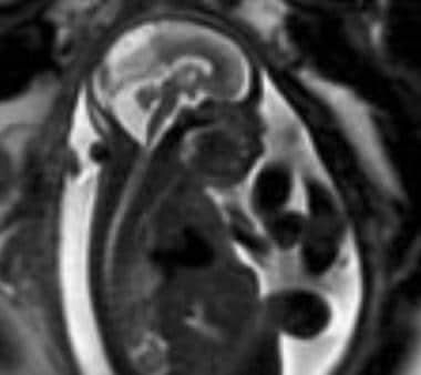 An antenatal MRI showing Dandy-Walker malformation