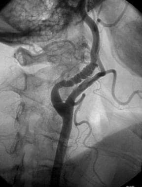 Angiogram of type 1 fibromuscular dysplasia in a 4
