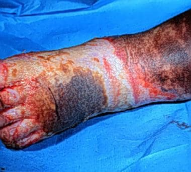 Third-degree burns are usually leathery, dry, inse