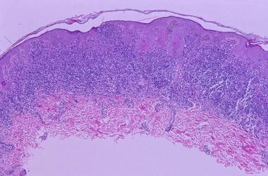 At low magnification, a dome-shaped papular lesion
