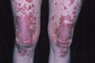 Papulosquamous lesions of subacute cutaneous lupus