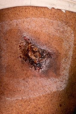 An isolated lesion of calciphylaxis manifesting as