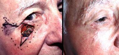 Left: Infraorbital defect with a Burow advancement