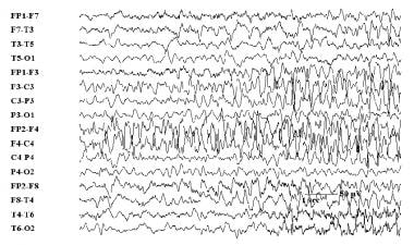 Twenty seconds into a seizure that had focal onset