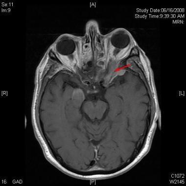 Neuroimaging study (MRI of brain and orbits) revea
