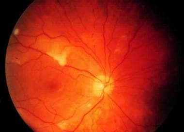Purtscher-like retinopathy in a patient with syste