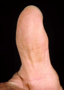 Postoperative appearance of a thumb tip after cove