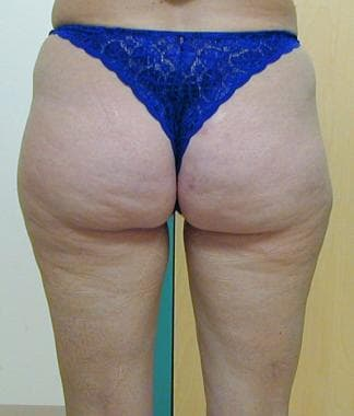 Liposuction, trunk. Posterior view of patient befo