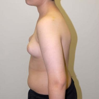 A 16-year-old patient with adolescent gynecomastia