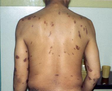 Epidemic Kaposi sarcoma (KS). Large violaceous tru