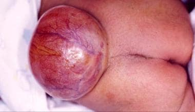 Spina Bifida: Background, Pathophysiology, Etiology