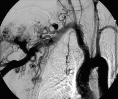 Hypertrophied subclavian artery resulting from low