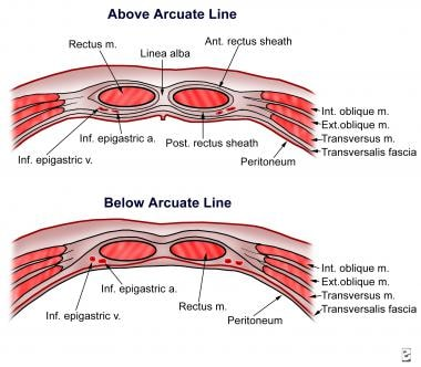 Anatomy of the rectus sheath.