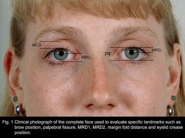 Clinical photograph of the complete face used to e