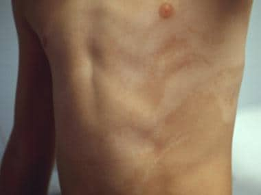 Hypomelanosis of Ito on the torso.