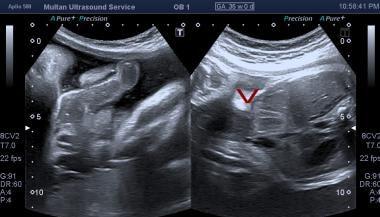 Ultrasound of fetal abdomen showing anterior wall