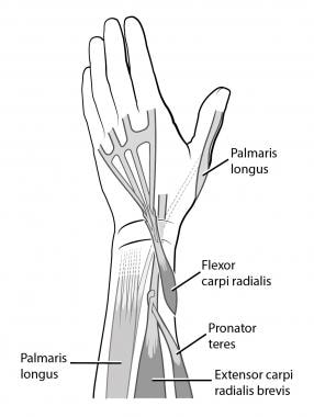 Flexor carpi radialis (FCR) to extensor digitorum