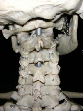 Cervical spine, as seen from behind, showing arch