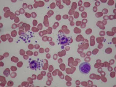 Spurious thrombocytopenia. Peripheral smear of a p