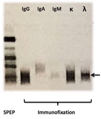 On the left a serum protein electrophoresis (SPEP)
