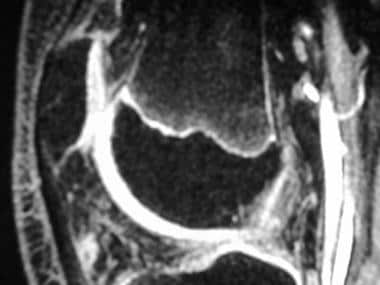 Sagittal 3-dimensional gradient-echo fat-saturated