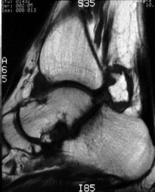 Sagittal T1-weighted and sagittal short-tau invers