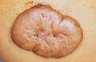 Hypertrophic scarring and keloids. Keloid scar sho