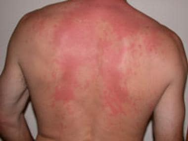 Histamine rash images reverse search for Fish allergy symptoms