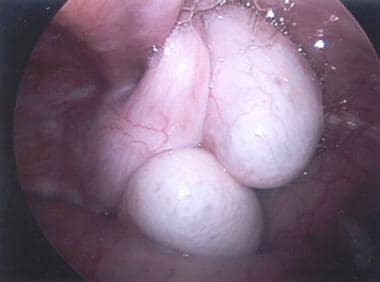 Diagnostic laparoscopy of a crossed ectopic testis