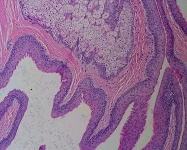 Note the crenulated eosinophilic lining of the cys