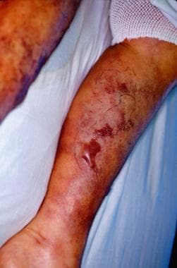 Calciphylaxis may manifest as rapidly progressive,